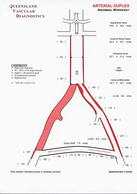 Aortoiliac Arteries