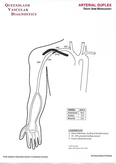 upper limb arteries queensland vascular diognostics. Black Bedroom Furniture Sets. Home Design Ideas